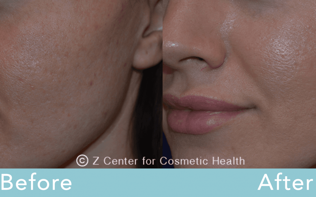 Acne Scars Treatments | Los Angeles