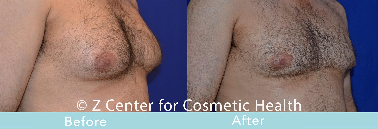 Coolsculpting-Male-Chest-Before---038--After--1