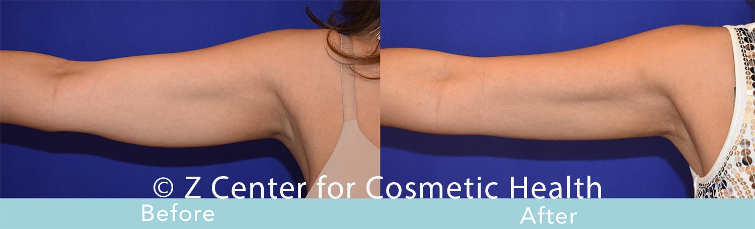 Coolsculpting-Arm-Before---038--After--5