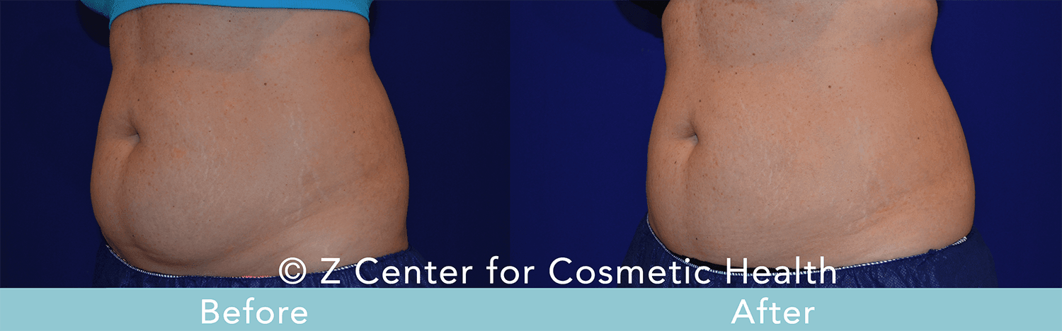 Coolsculpting-Abdomen-Before---038--After--2
