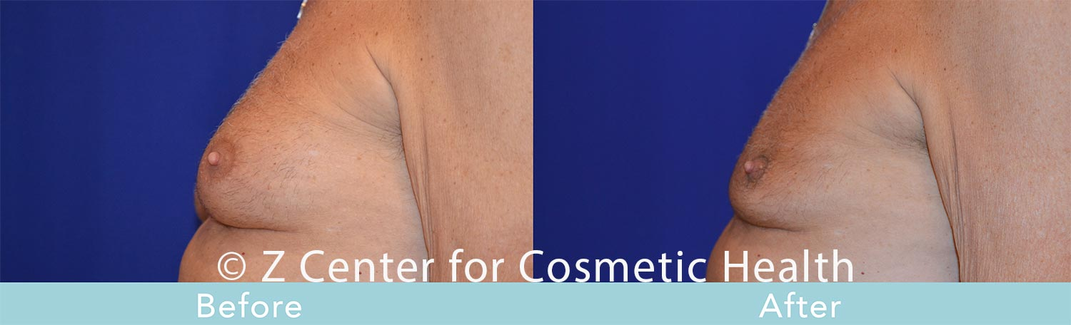 Coolsculpting-Male-Chest-Before---038--After--2