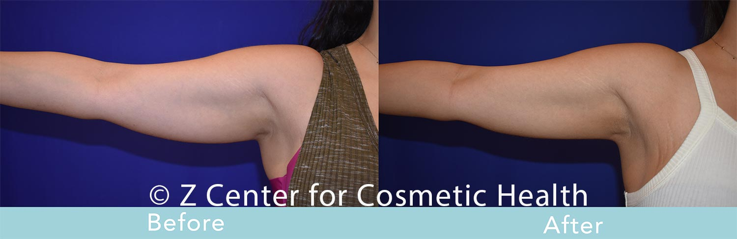Coolsculpting-Arm-Before---038--After--2
