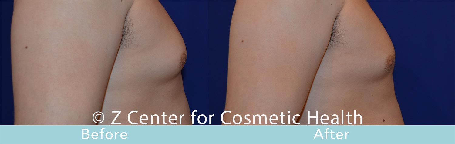 Coolsculpting-Male-Chest-Before---038--After--3