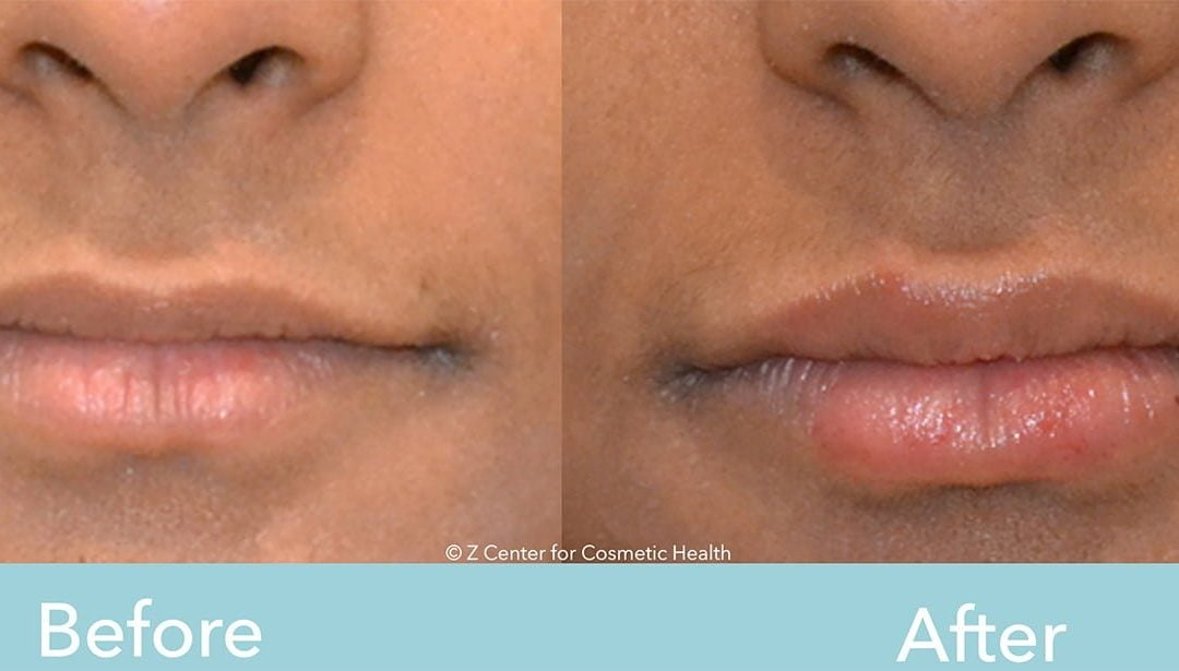 Lip Injections Before & After #1