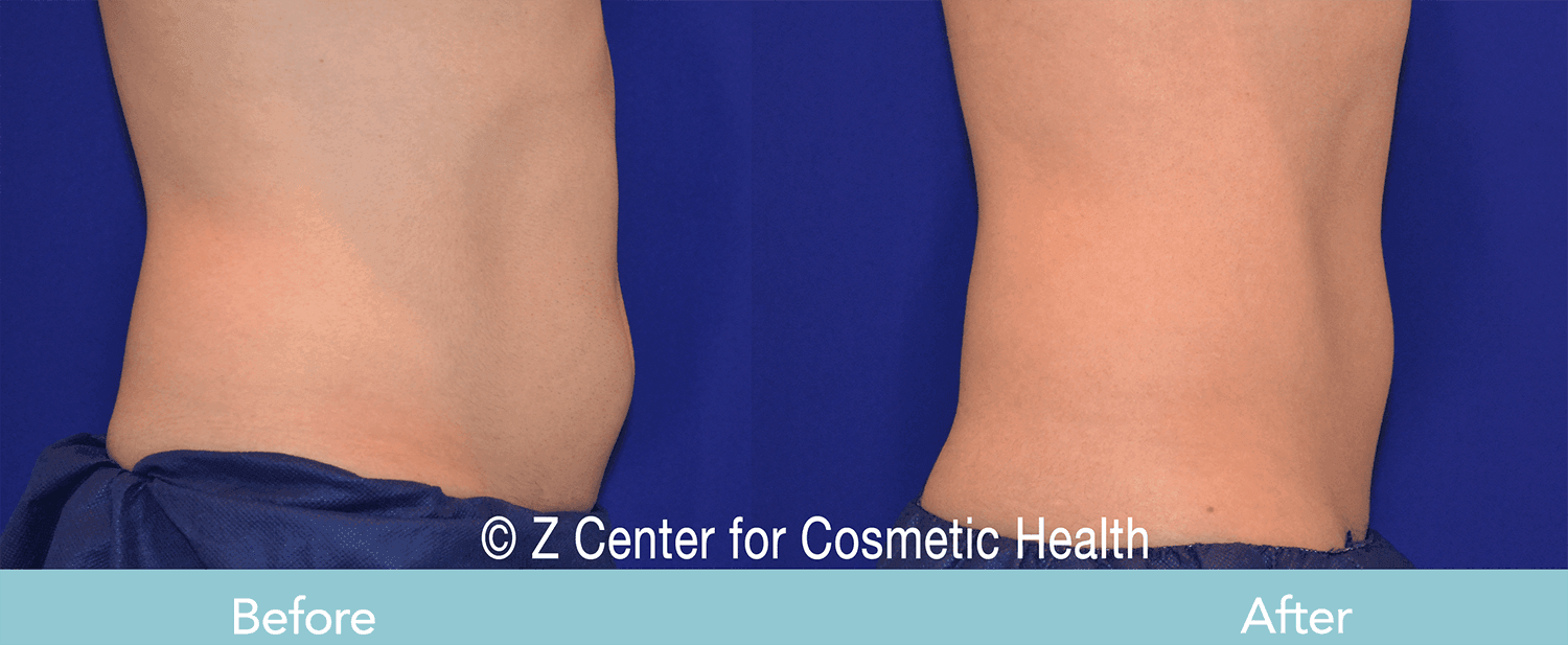 Coolsculpting-Abdomen-Before---038--After--1