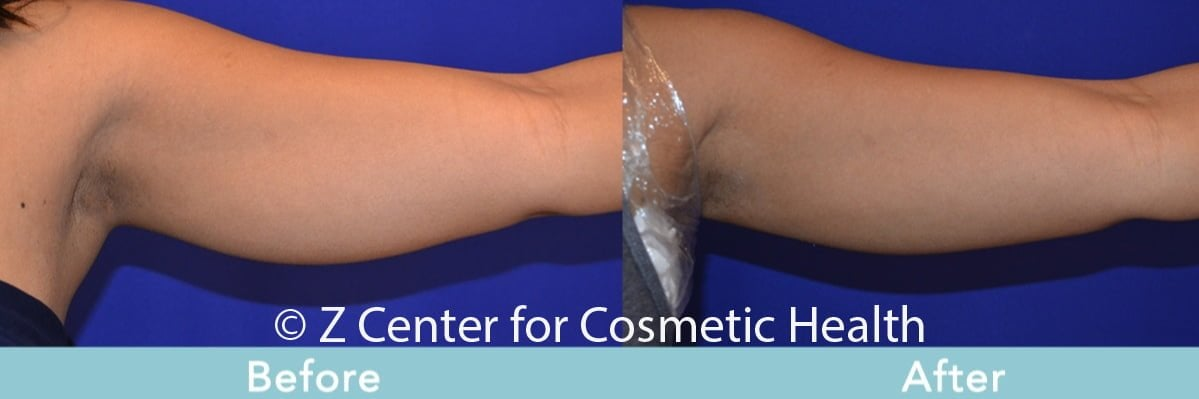 Coolsculpting-Arm-Before---038--After--3