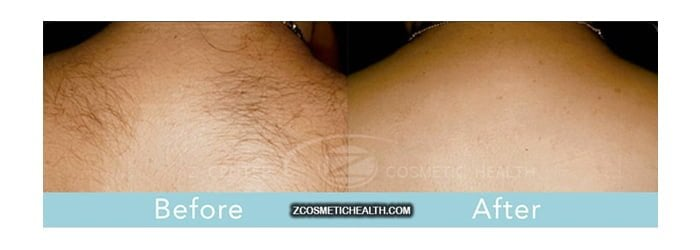 Laser Hair Removal: Worth Every Penny