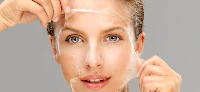 The Long List of the Best Acne Treatments: Chemical Peels
