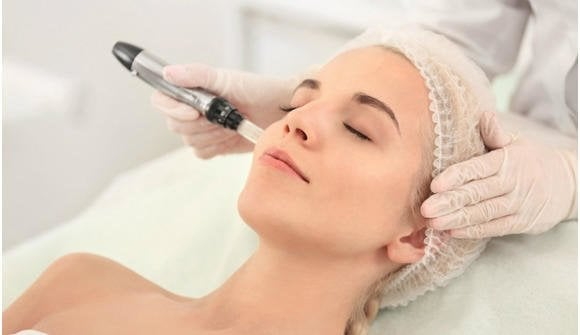 The Anti-Aging Miracle Worker: MicroNeedling