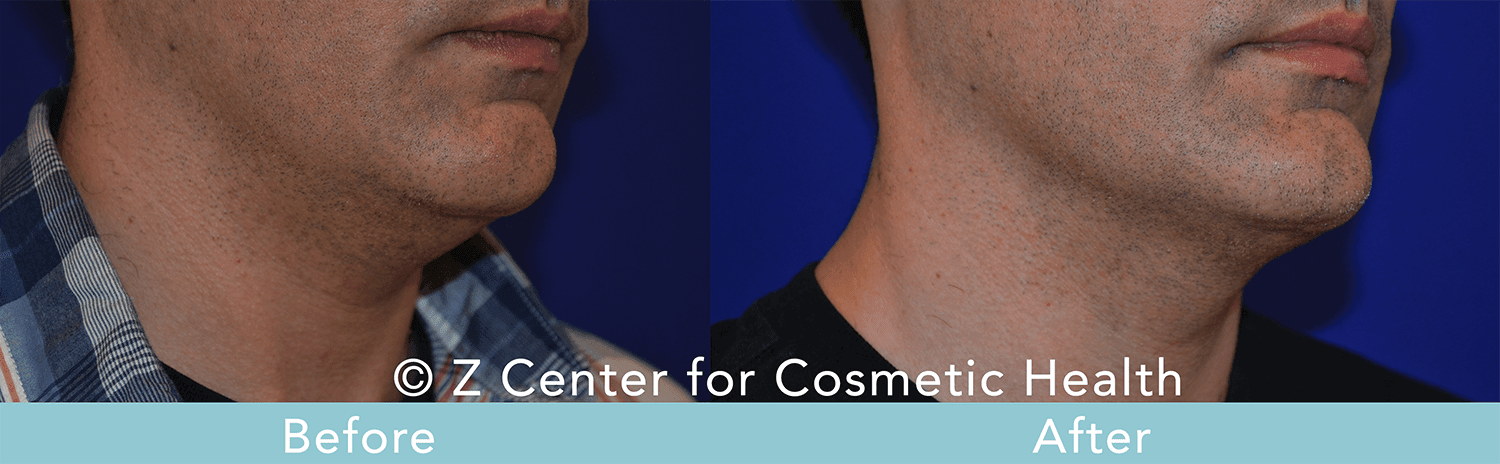 Coolsculpting-Double-Chin-Before---038--After--4