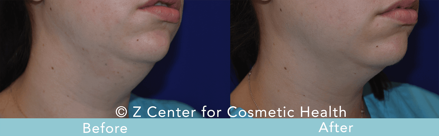 Coolsculpting-Double-Chin-Before---038--After--5