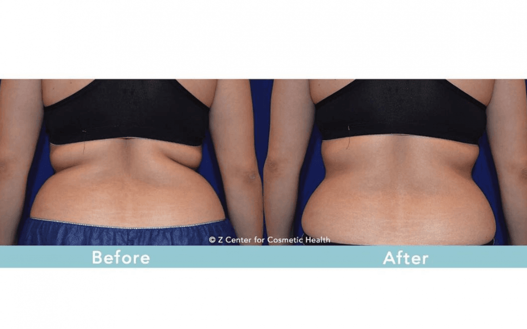 Top 3 Reasons to Get CoolSculpting Now