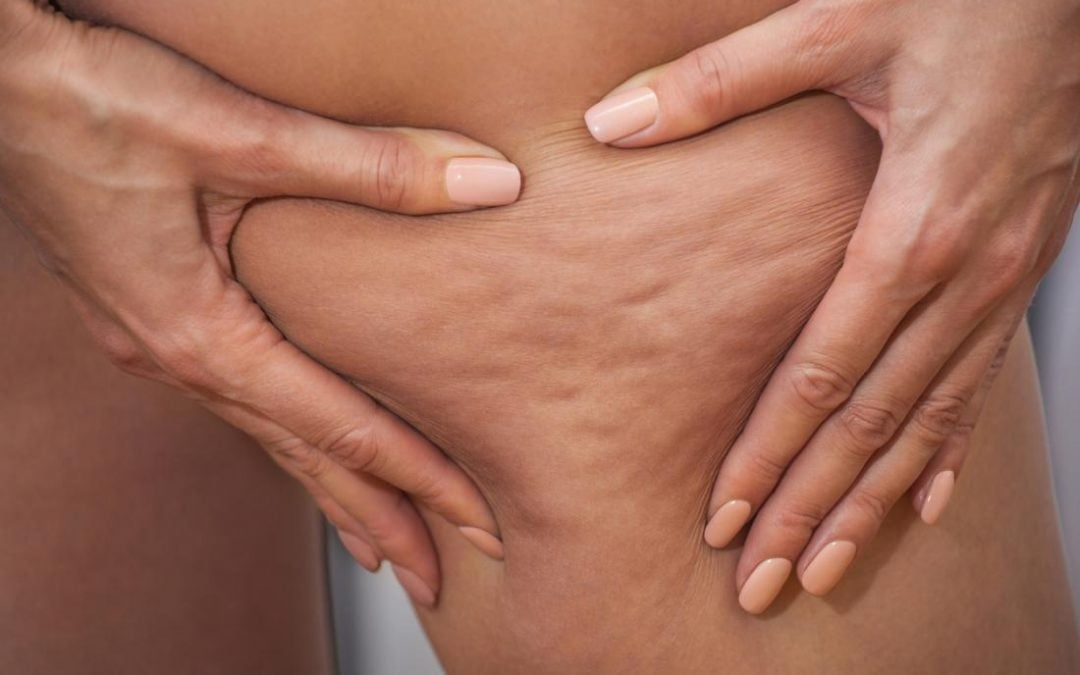 A Possible Cure for that Relentless Cellulite