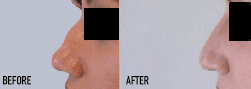 Before and After Non-Surgical Nose Job