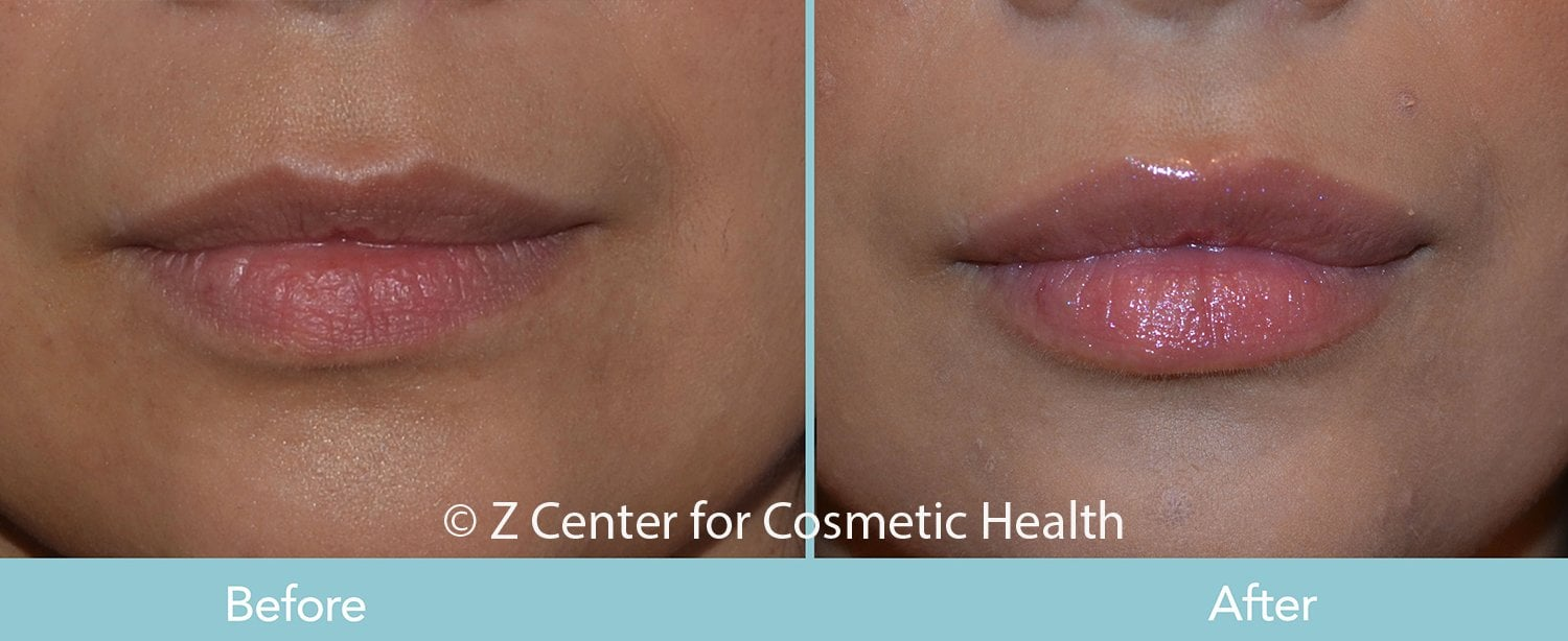 injectable fillers reversible