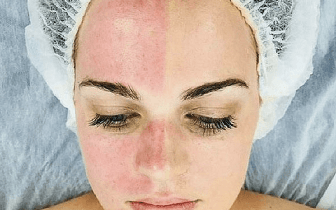 Are Chemical Peels Good for Tightening Skin?
