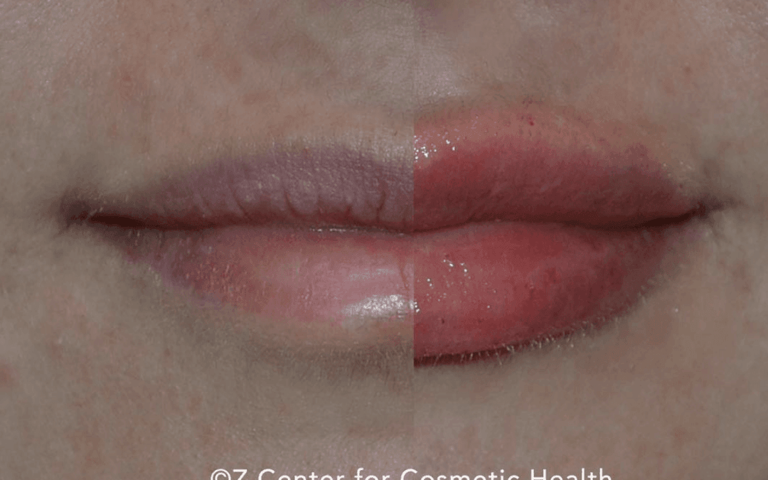 Debunking the Top 7 Lip Filler Myths