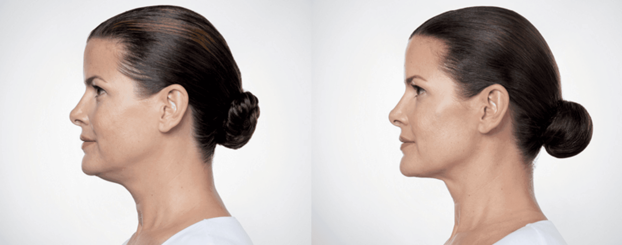 what is kybella