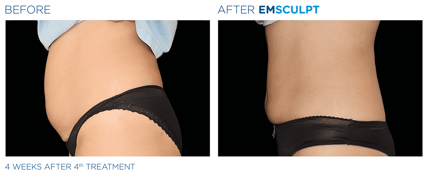emsculpt and ab conditioning