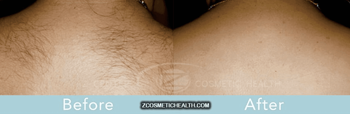 The Do's and Don'ts of Laser Hair Removal