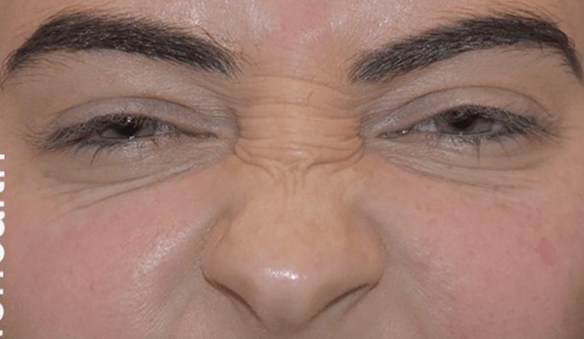 How Often Should You Get Botox?