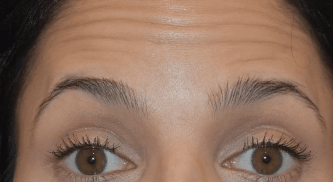 Botox vs. Dysport: Which One Should I Get?