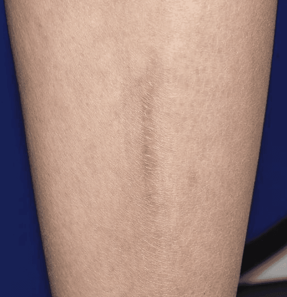 Treat Your Scar With This Laser Treatment