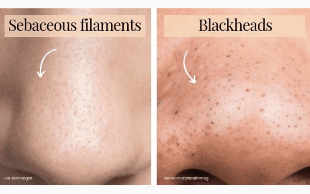 Sebaceous Filaments vs. Blackheads
