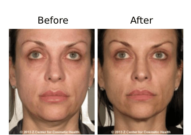 ThermiSmooth vs. Ultherapy: Which One Should I Get?