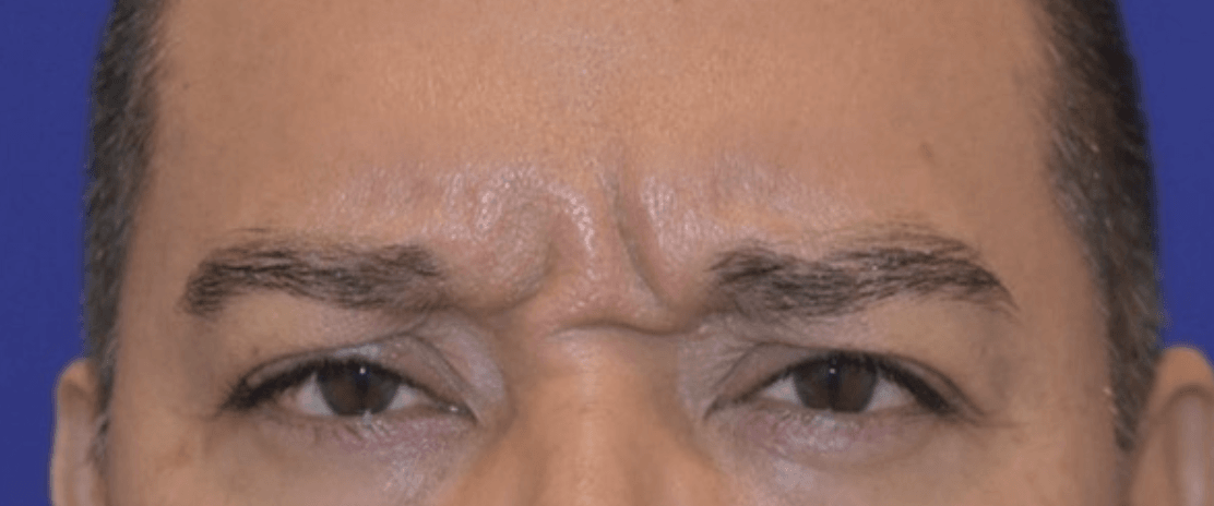 The-Top-Treatments-for-Glabellar-Lines