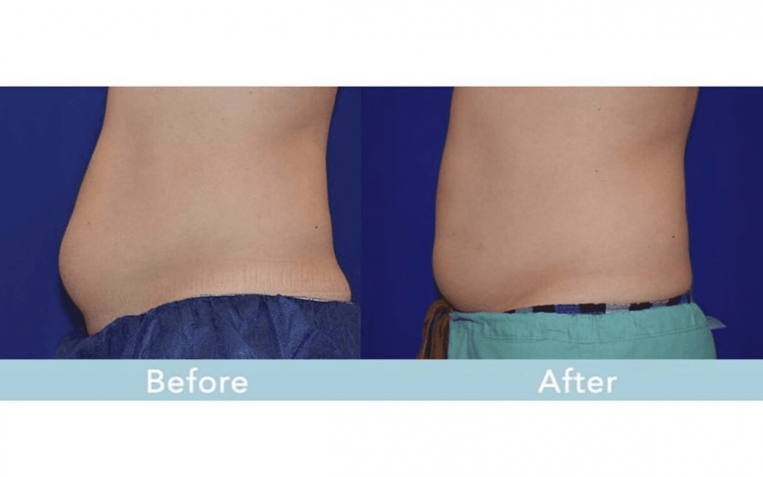 Answering Your CoolSculpting Questions