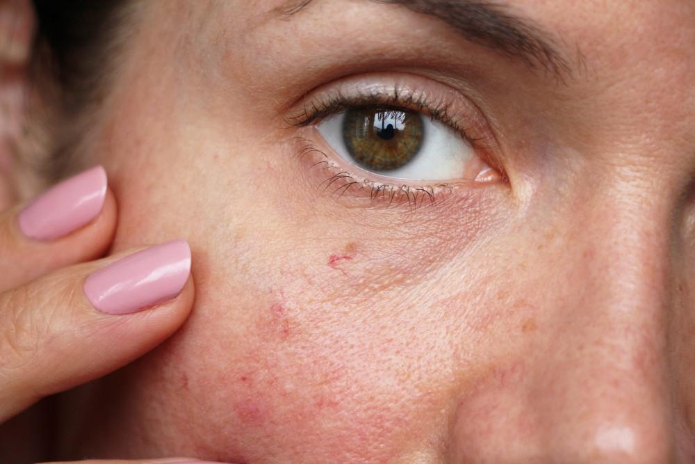 How Do I Treat and Prevent Spider Veins on My Face?