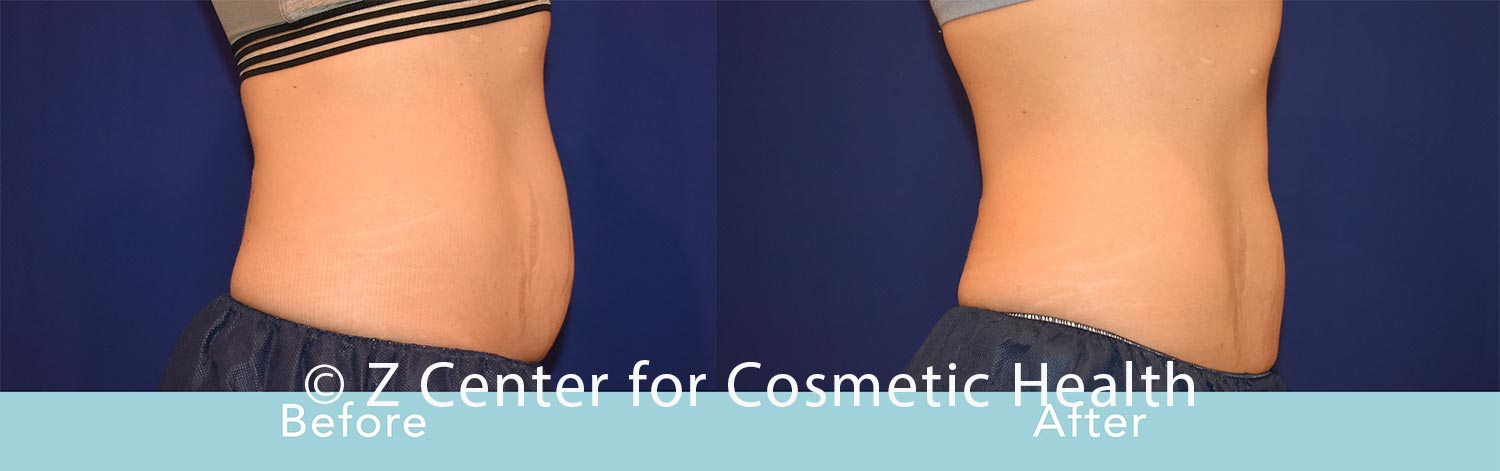 Coolsculpting-Abdomen-Before---038--After--36