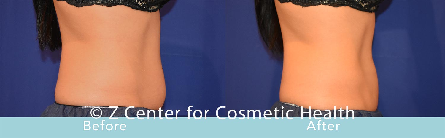 Coolsculpting-Abdomen-Before---038--After--33