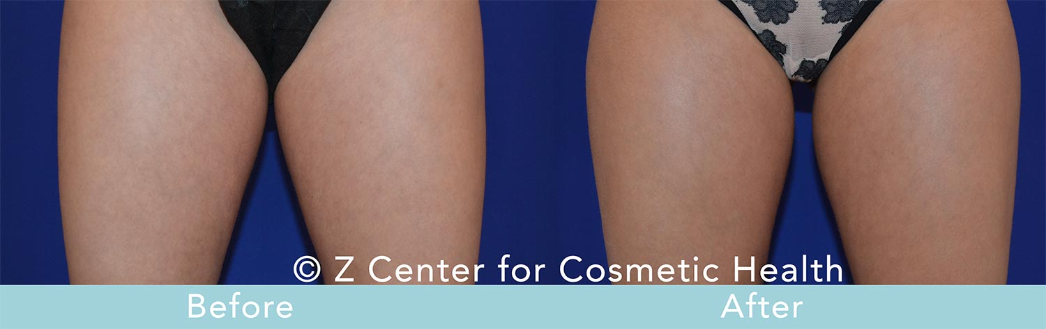 Coolsculpting-Inner-Thighs-Before---038--After--2