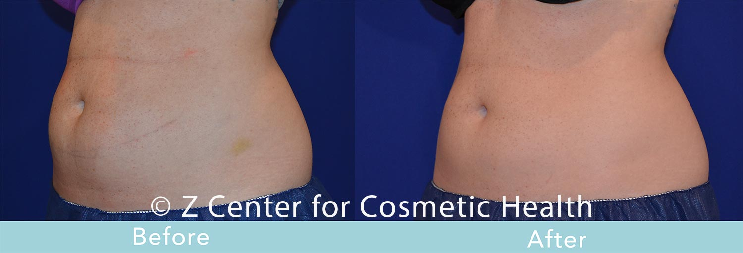Coolsculpting-Abdomen-Before---038--After--32
