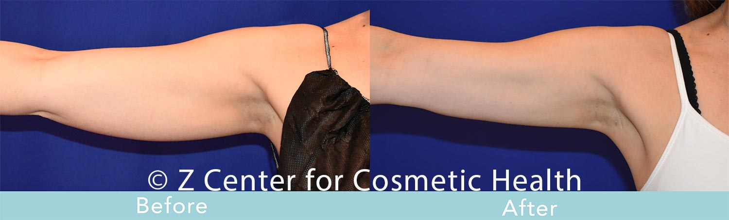 Coolsculpting-Arm-Before-and-After--6