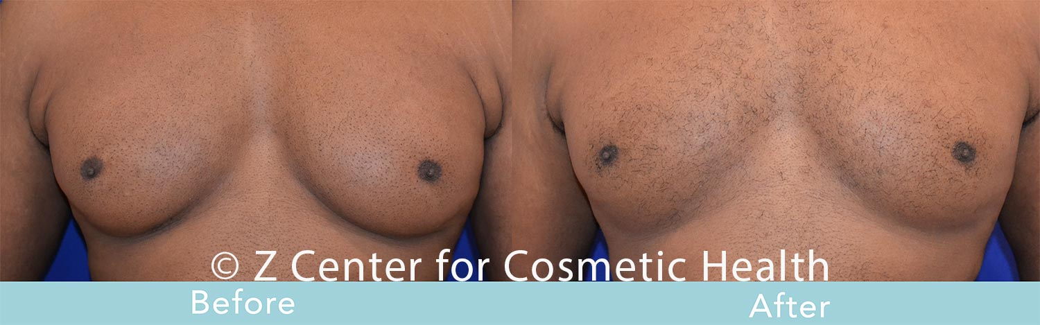 Coolsculpting-Male-Chest-Before---038--After--4