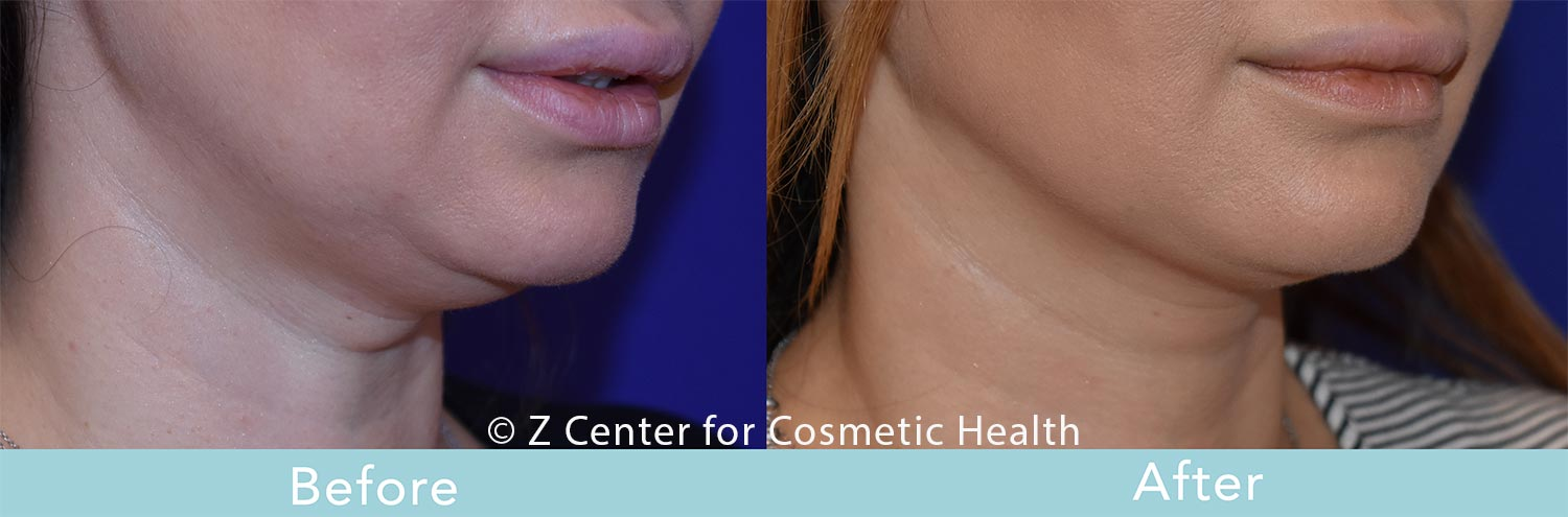 Coolsculpting-Double-Chin-Before---038--After--8