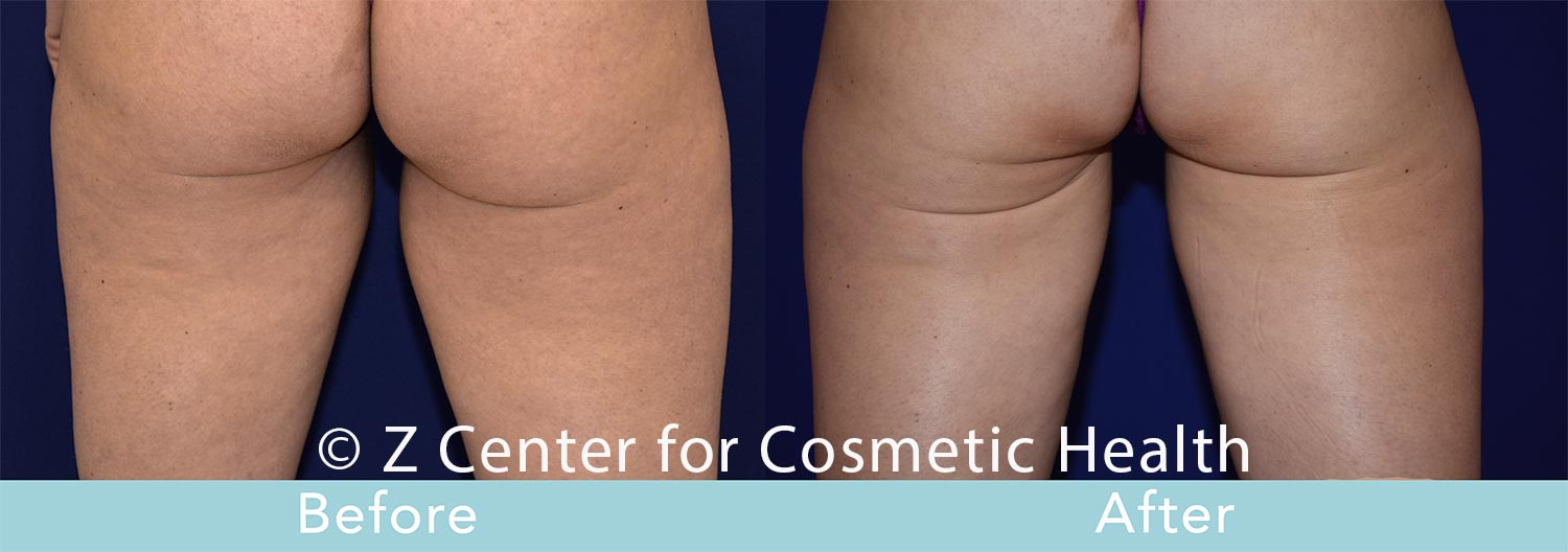Coolsculpting-Inner-Thighs-Before---038--After--5