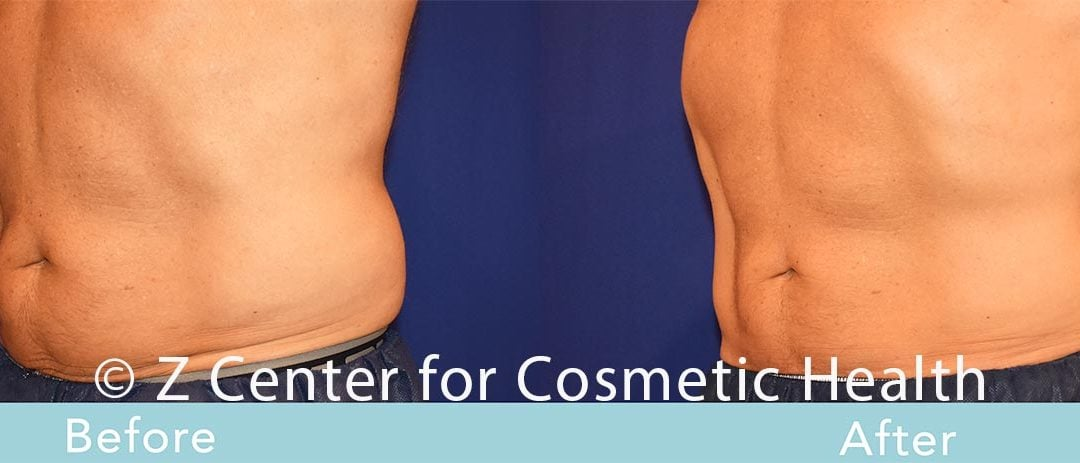 Coolsculpting Abdomen Before & After #31