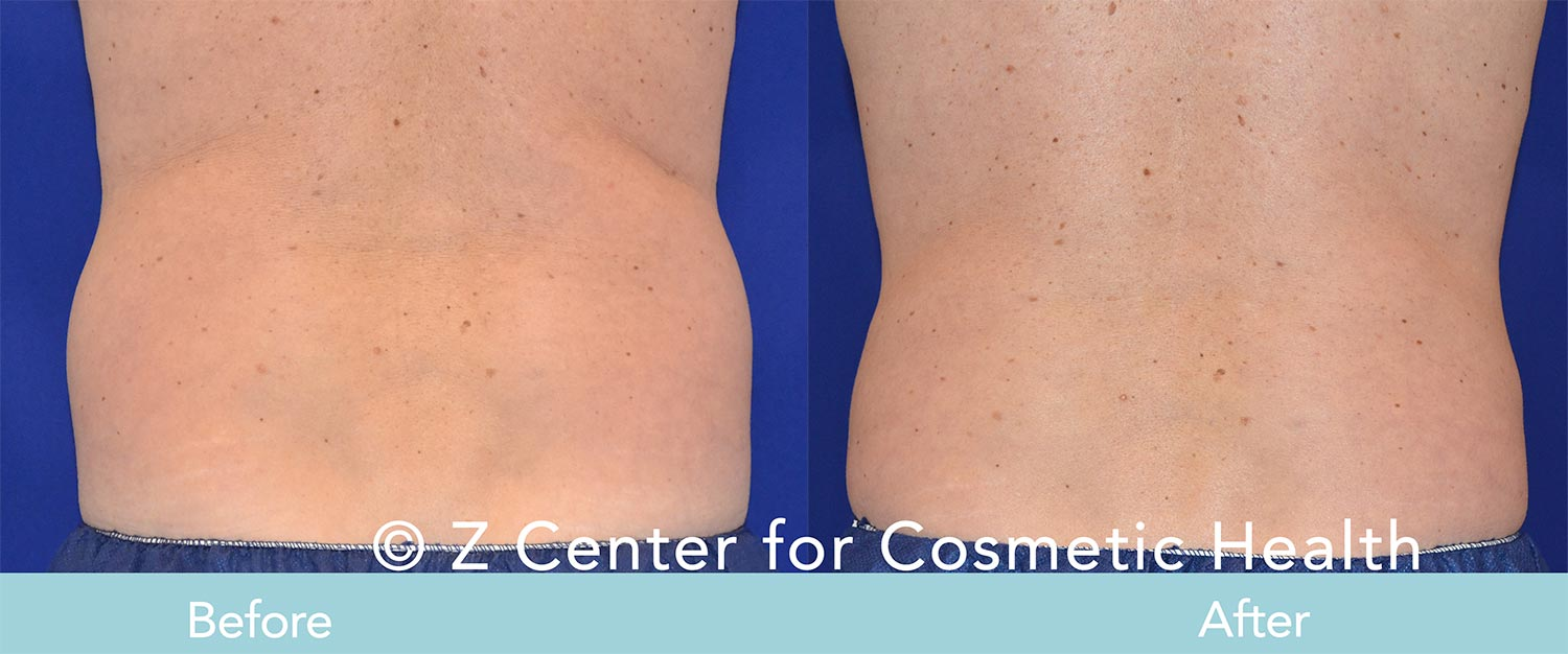 Coolsculpting-Flank-Before---038--After--4