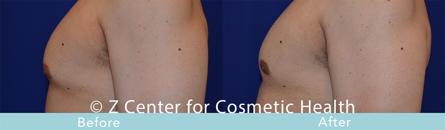 Coolsculpting-Male-Chest-Before---038--After--6