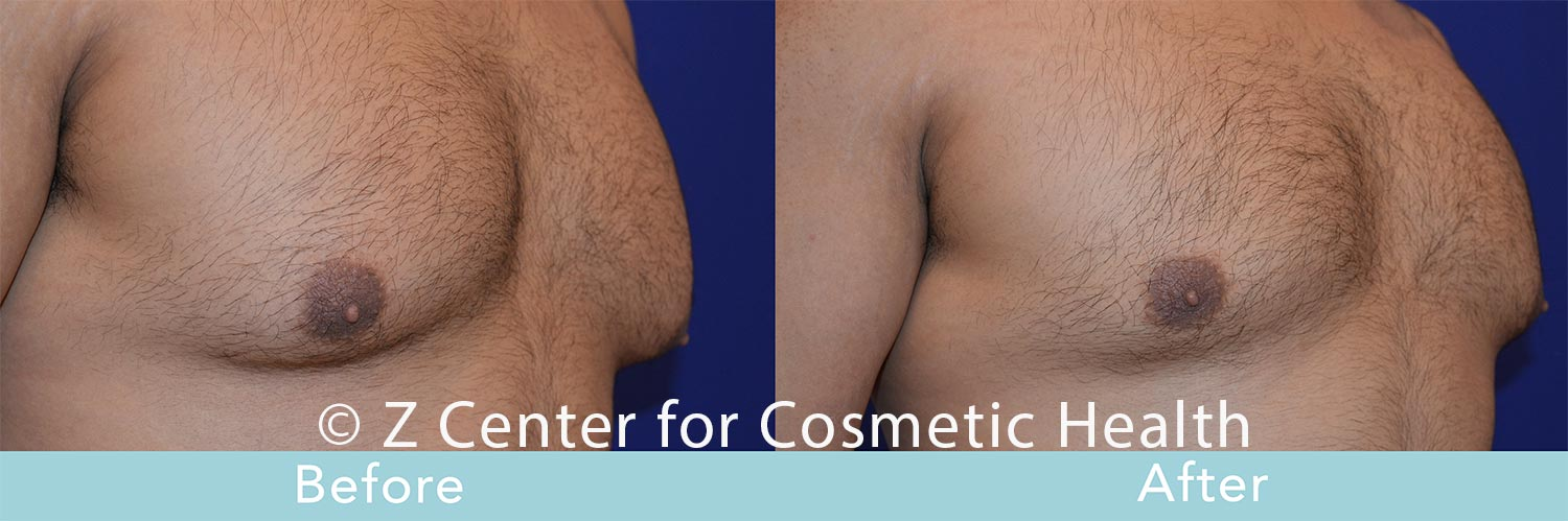 Coolsculpting-Male-Chest-Before---038--After--7
