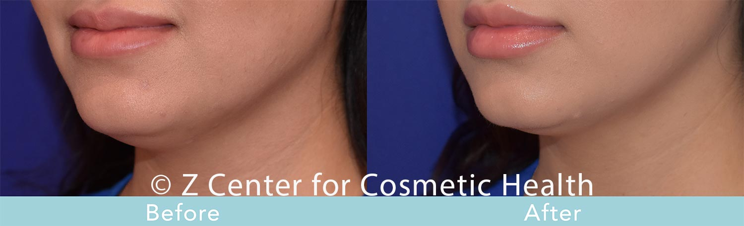 Coolsculpting-Double-Chin-Before---038--After--7