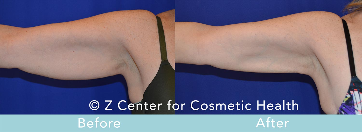 Coolsculpting-Arm-Before-and-After--7